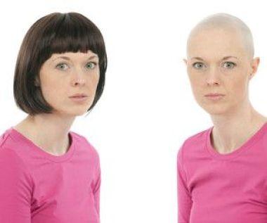 Utilitzar perruca per quimioteràpia - Psicologia en Càncer