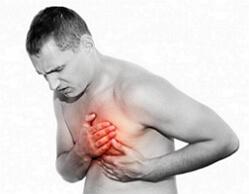 невроз сердца фото