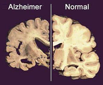 Diferencias entre un cerebro sano y uno con Alzheimer