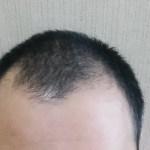 Mハゲと薄毛の違い