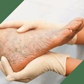NanoDerm – средство от грибка и псориаза (Украина)