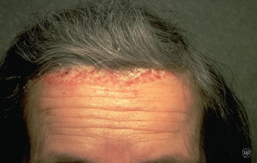 Scalp Psoriasis Photos Gallery
