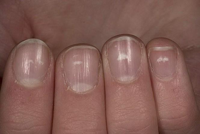 Nail Involvement As A Predictor Of Psoriatic Arthritis