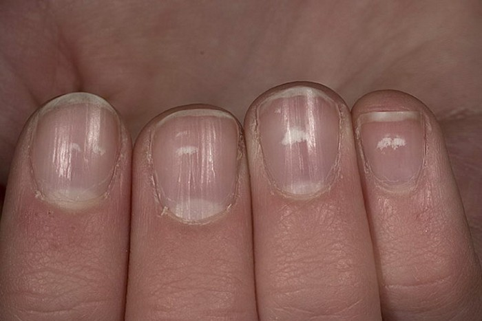 Nail Psoriasis Treatment