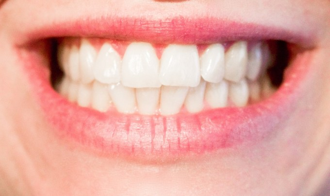 A review of dental stem cells – where are we now in regards to clinical trials?