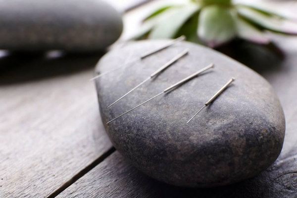 5 Benefits of Acupuncture 2