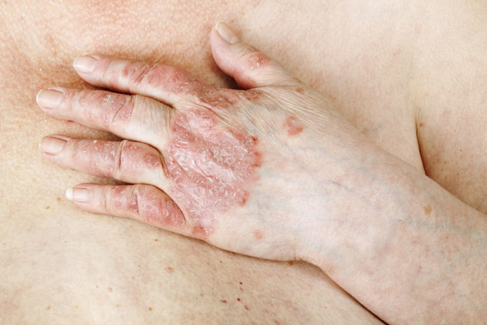 The Therapeutic Uses of Salt psoriasis