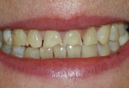 understanding-eating-disorders-s22-photo-of-tooth-enamel-erosion-bulimic