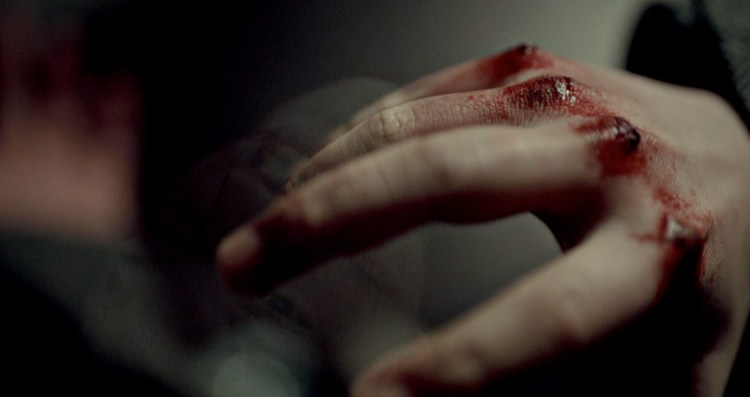 Hannibal210-Knuckles