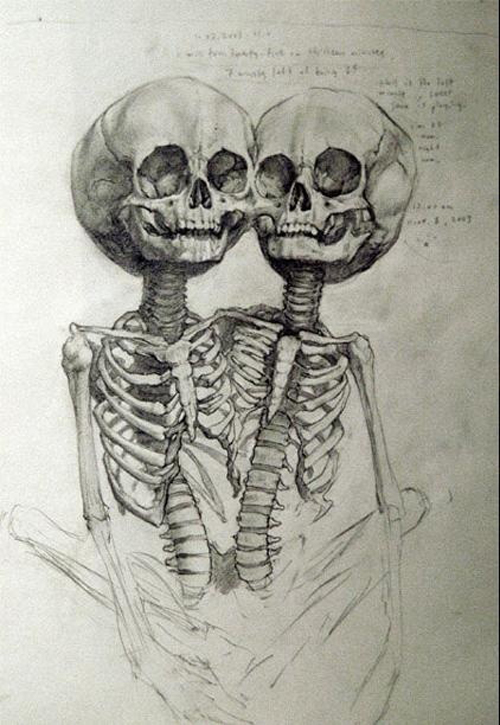 conjoined-twin-sketch
