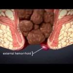 HÉMORROÏDES : causes, symptomes et traitement 7