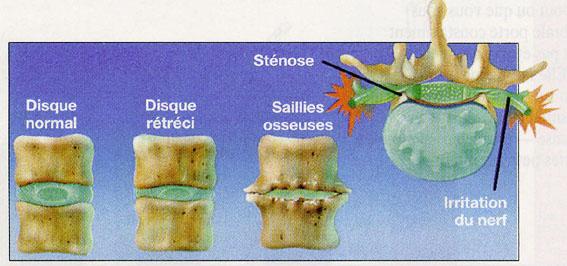 Mal de dos : Comprendre la douleur dorsale 1
