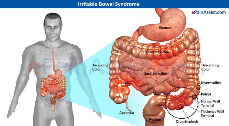 Le syndrome du côlon irritable : Symptômes et causes 1