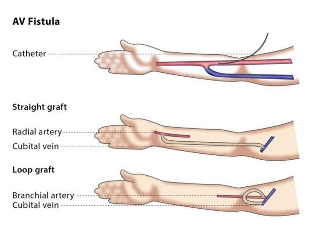 quest-ce-quune-fistule-arterio-veineuse