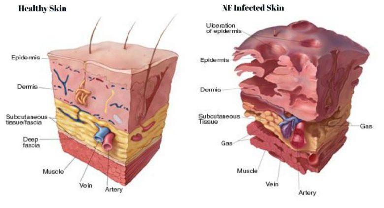 Qu'est-ce qu'une infection nécrosante des tissus mous ? 1