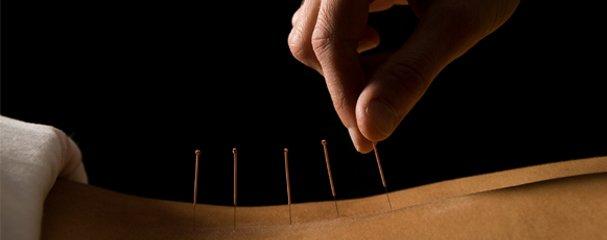 Acupuncture coupe faim pour Maigrir : est-ce que ça marche ? 1