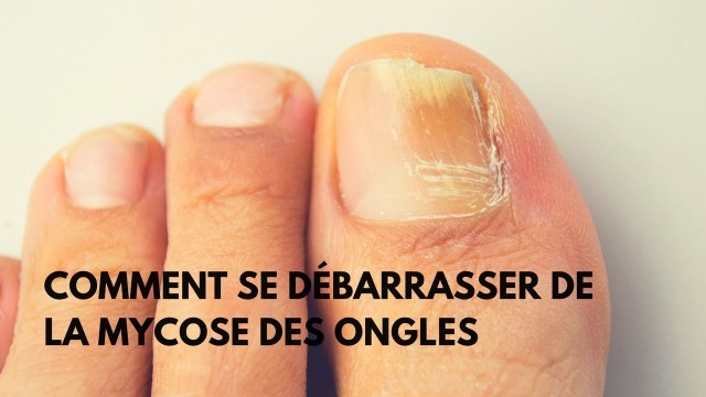 L'onychomycose : Maladie fongique des ongles