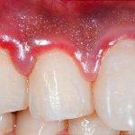Qu'est ce que la gingivite ?