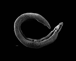 The schistosoma fluke, which is responsible for the bilharzia disease (© Wikimedia Commons)