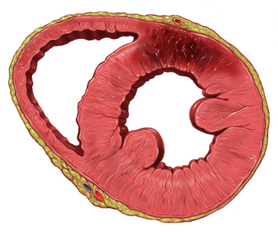 In some rare cases, cannabis may increase risk of heart attack (© Wiki Commons)