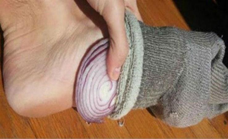 Dormir con una cebolla en el pie para eliminar toxinas