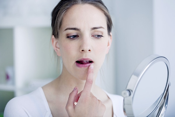 Mujer con herpes labial