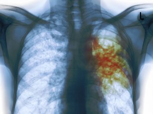 An X-ray of the chest of a man with tuberculosis. The areas infected with TB bacteria are colored red. Science Photo Library/Corbis