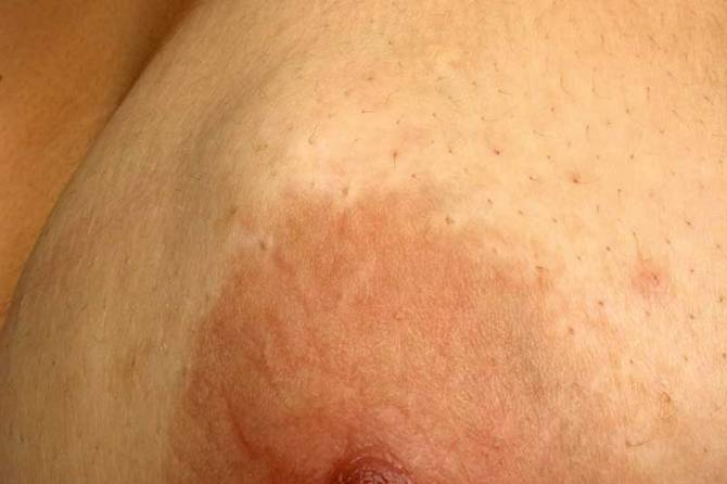 Breast Lumps: What it means & Why you should Check.