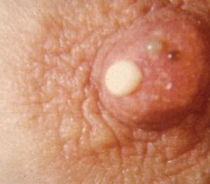 Galactorrhea