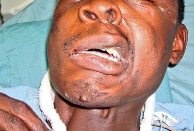 Tetanus: Causes, Symptoms, Treatment, Prevention