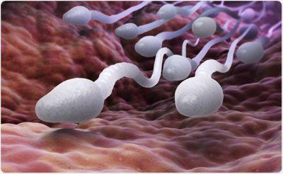 Seminal Fluid Analysis (SFA): Good Sperm Qualities