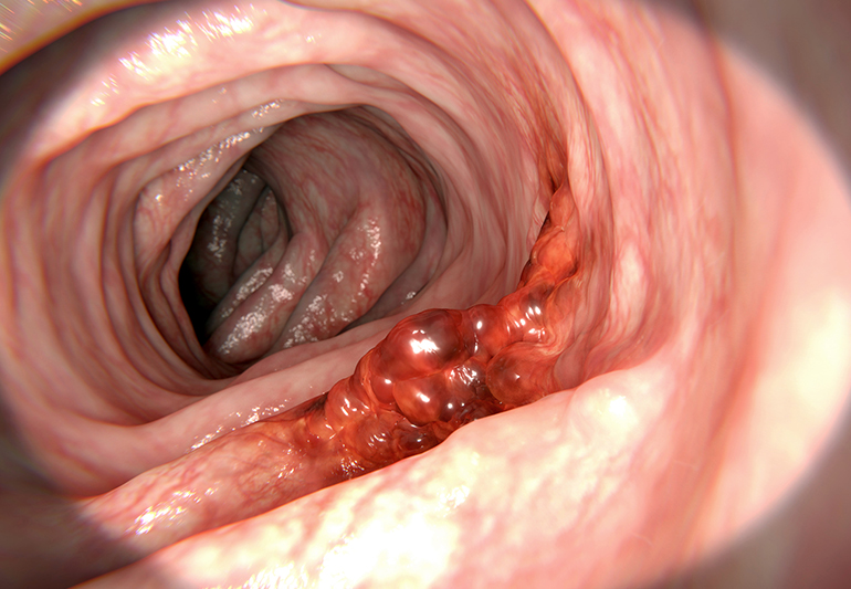Colorectal cancer, colon cancer