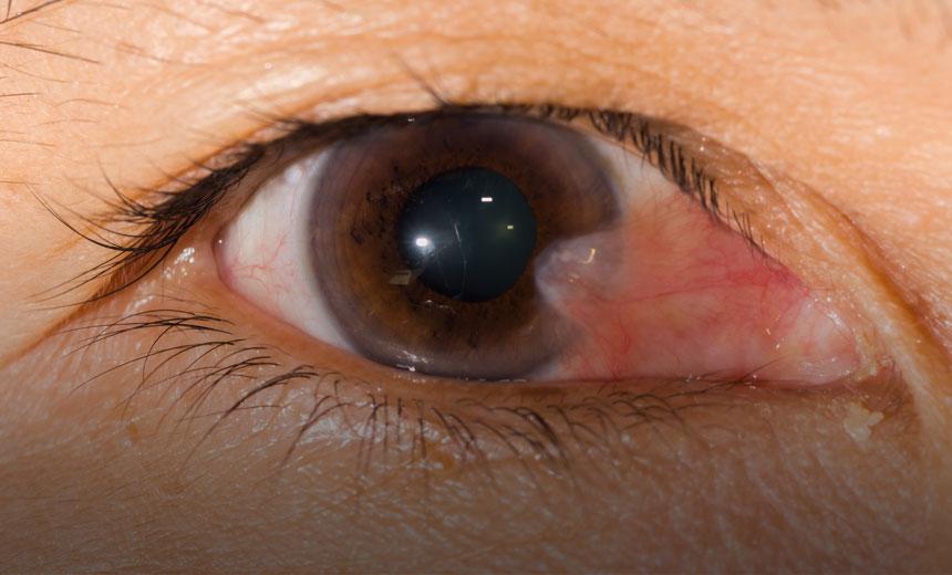 Eye swelling Pterygium