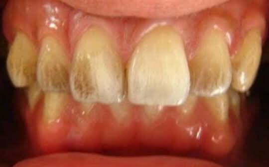 Extrinsic Tooth Discoloration