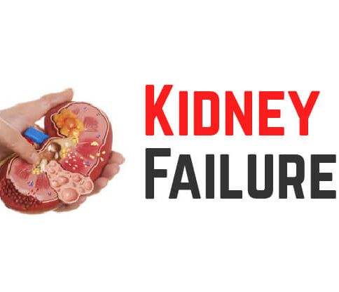 Chronic Kidney Disease (CKD): Causes, Symptoms, Prevention