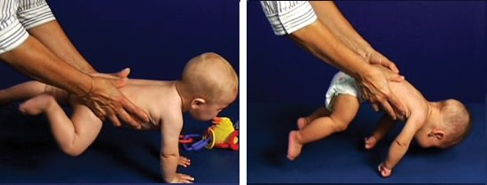 Typowy i nietypowy rozwój 6-miesięcznego dziecka - Wyprost Obronny