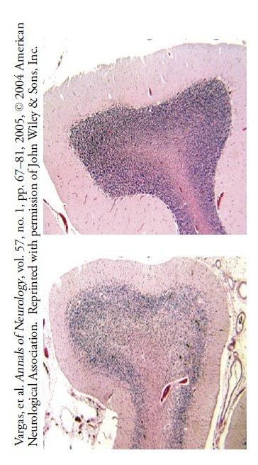 Komórki Purkinjego (fioletowoniebieskie kropki) w normalnym ludzkim móżdżku.