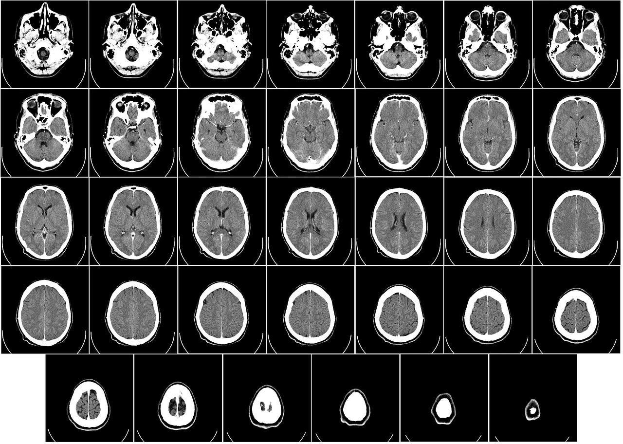 computer-tomography-62942_1280.jpg