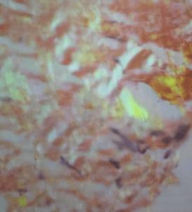Amiloidosis Pulmonar