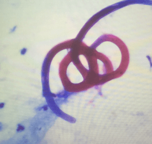 Estrongiloidiasis Pulmonar