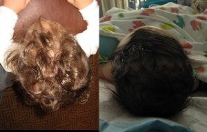 Grayson's head shape before (left) and after (right) surgery