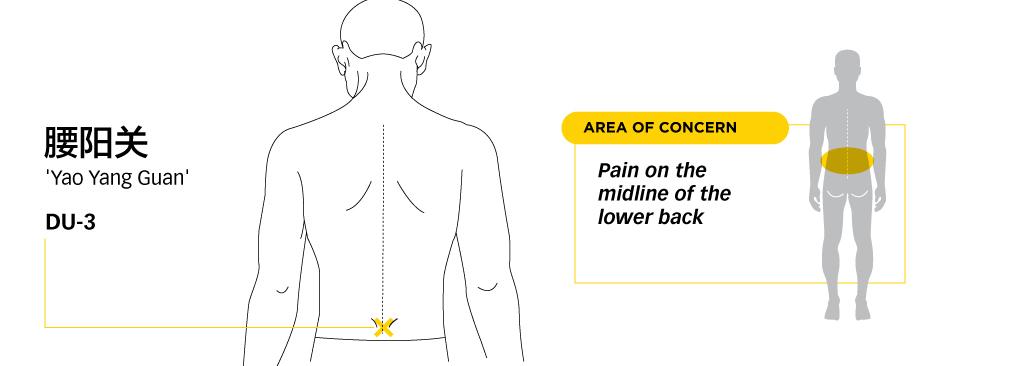 Lower-Back-pain-Management-4-yaoyangguan