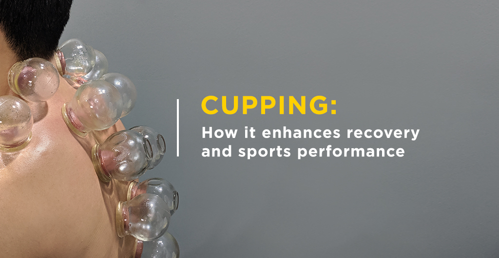 Cupping_How_it_enhances_recovery_and_sports_performance_1