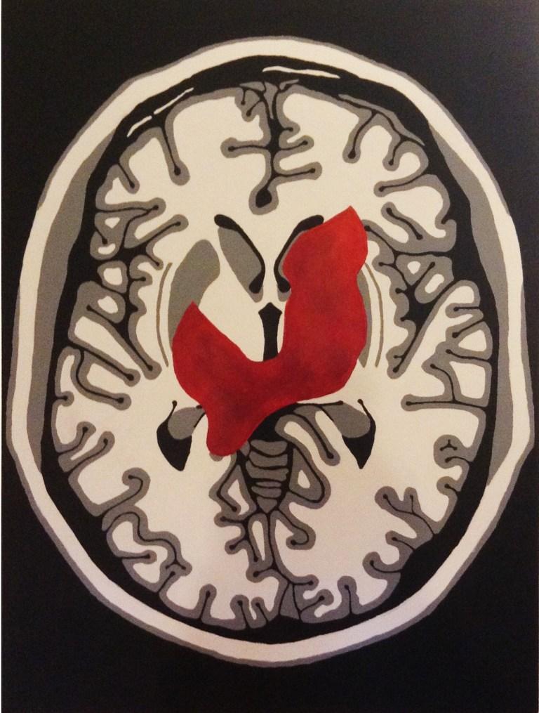 Auditory Hallucinations in Schizophrenia