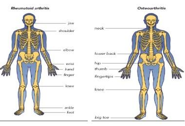 artrita reumatoida versus osteoartrita