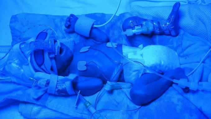 The Premature Birth Of Baby Lochlan - Punky Moms UK