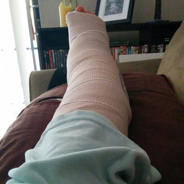 broken ankle phase 2