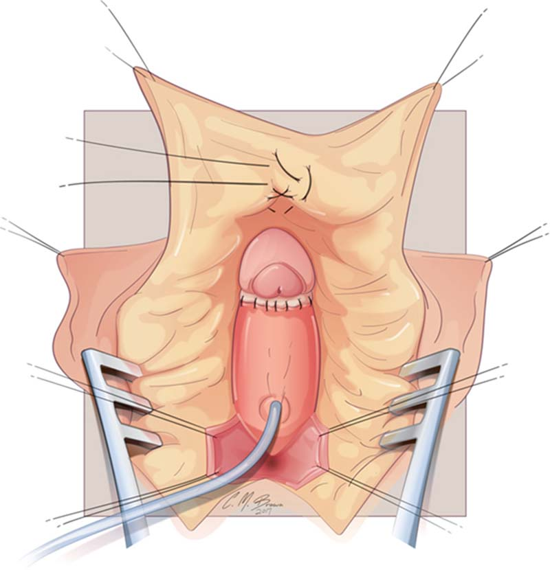 Clitoral Plastic Surgery