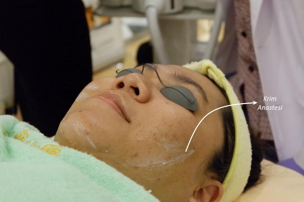 insta beauty center jakarta acne treatment series