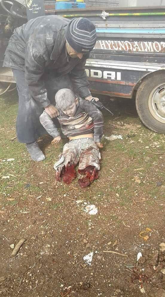 Terorista kome su rusko-šiitski sponzorisane režimske snage odsjekle obje noge